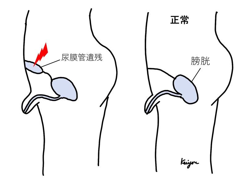 尿膜管遺残
