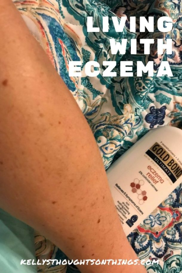 Do you want to win a $100 Visa Gift Card? Read my post about Living With #Eczema #goldbond #ad