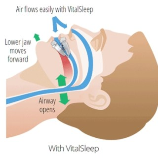 Relieve Snoring So You Can Get Some Sleep
