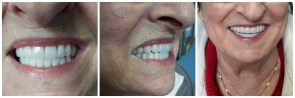 Patient after treatment - front-facing, profile, and smiling views
