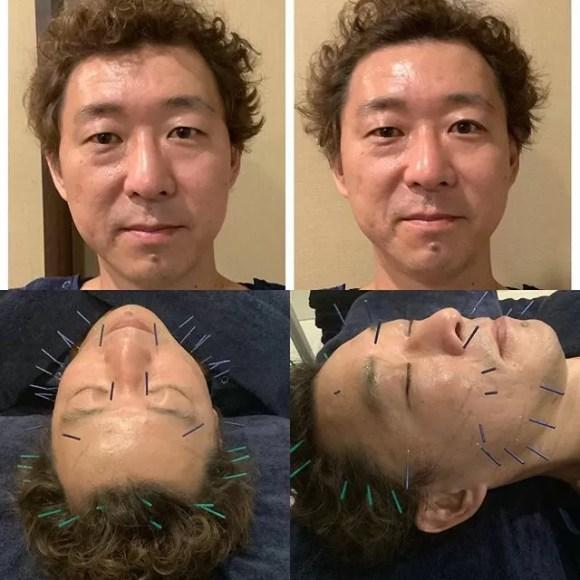 鍼は良い️おじさんにオススメ#美容鍼 #美容鍼灸 #鍼灸ハレレア