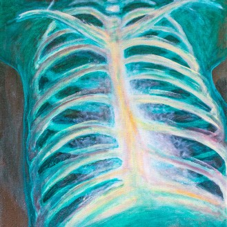 Chest Xray ©2017 Kendrea Rhodes