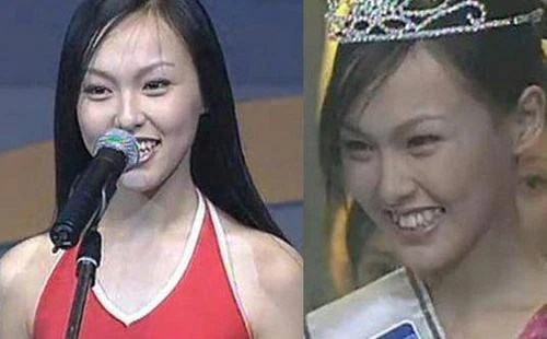 Trong khi nữ thần Hàn Quốc đập đi xây lại thì mỹ nhân Cbiz chỉ cần niềng răng thôi đã lên đời nhan sắc - Ảnh 8.