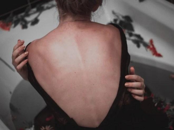 Những điều cần biết về bệnh cong vẹo cột sống - Ảnh 2.