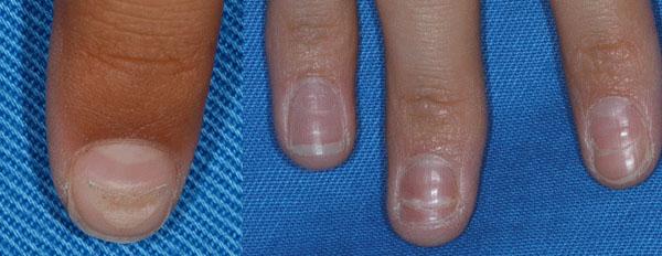 足口病後の爪変形・爪甲脱落症