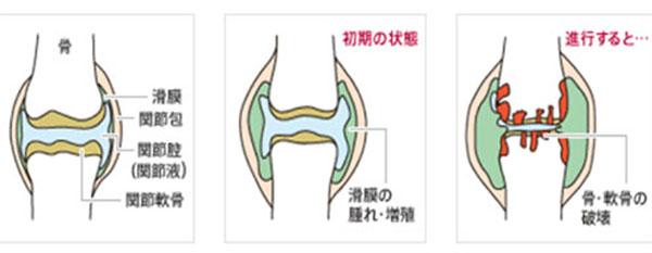 関節リウマチ