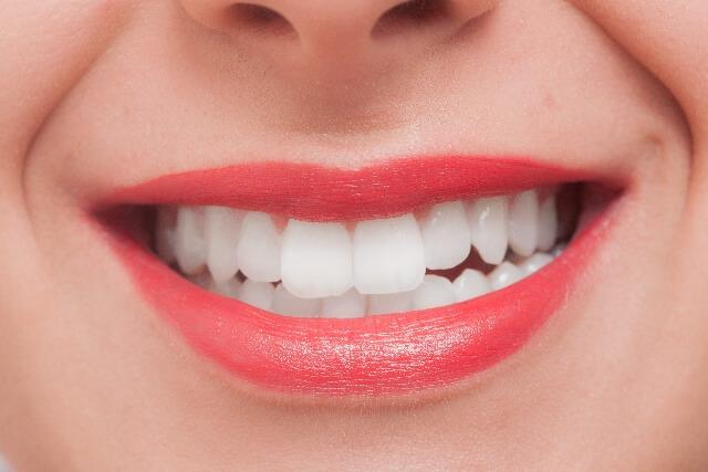 歯の矯正の金額はどのくらい?20代でも大丈夫?