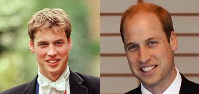 ウィリアム王子の髪の変化