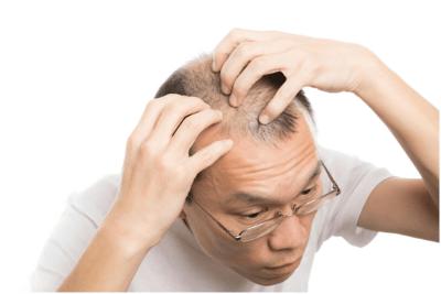 頭皮の乾燥