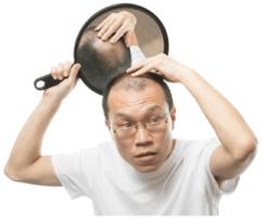AGA男性型脱毛症