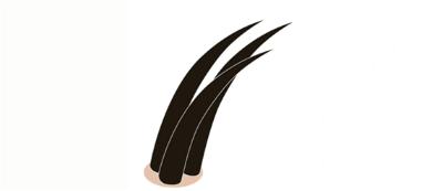 毛穴から複数生えている髪