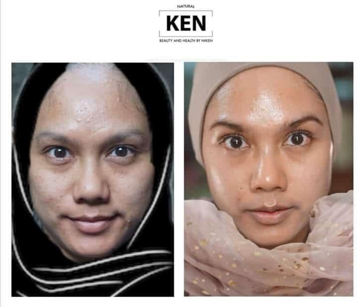 Perawatan kulit : Erlyn Amien