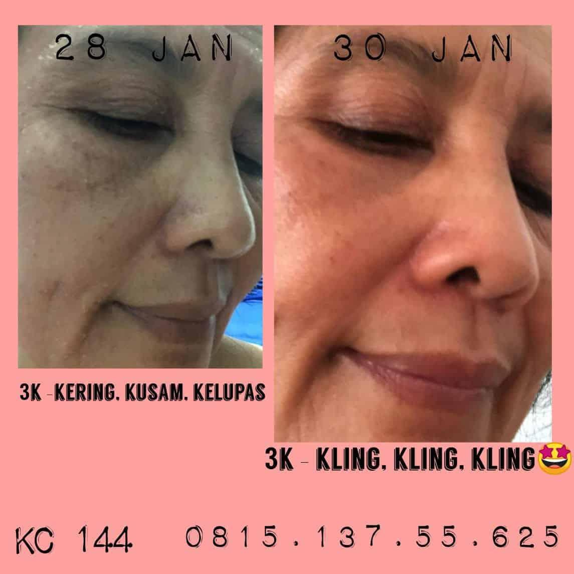 KENSkincare, perawatan wajah terlengkap