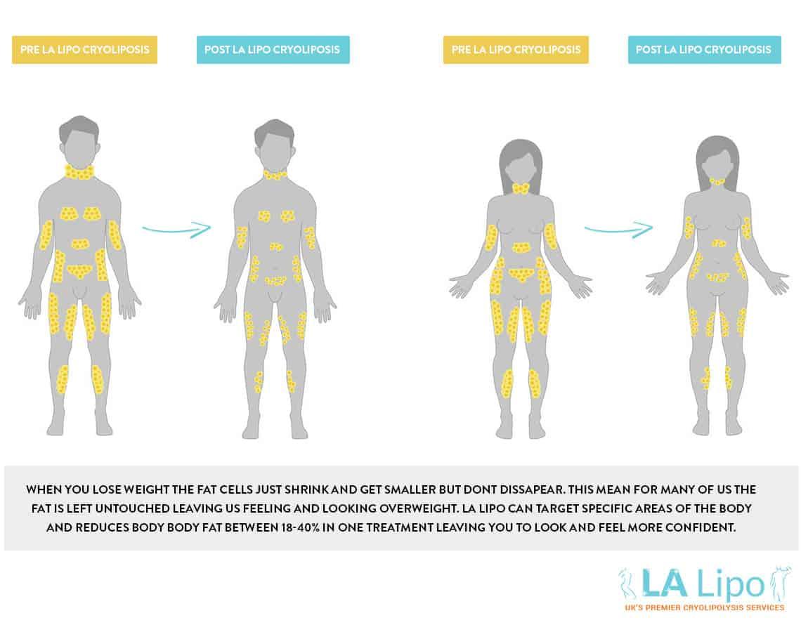 Weight Loss V Cryolipolysis Name