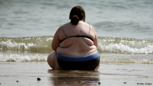 Obese_Lady