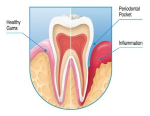 Bleeding gums, causes, treatment and prevention