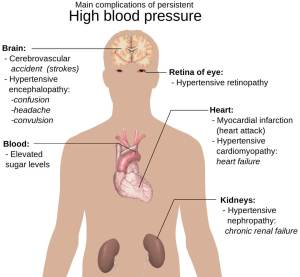 Foods that lower high blood pressure quickly to eat