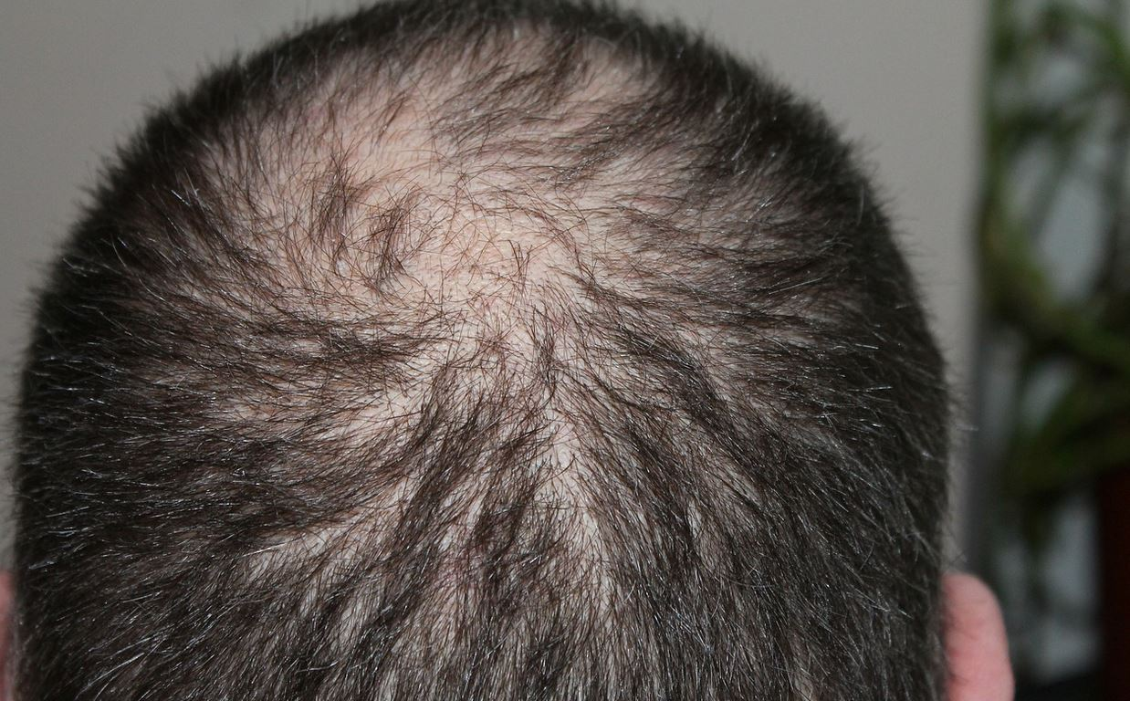 Hospital to go for Hair loss treatment in Kenya and where to buy Asami and Minoximed hair growth
