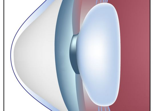 keratoconus specialists