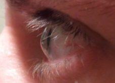 Profile view of eye with keratoconus