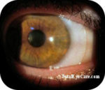 Scleral Contact Lenses - KeratoconusDoctors.com