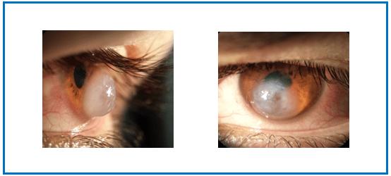 Swollen Cornea Holcomb c3-r treatment