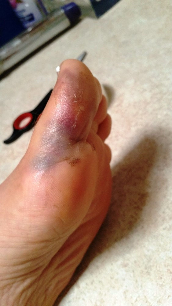 Does this look broken? It was serously painful.