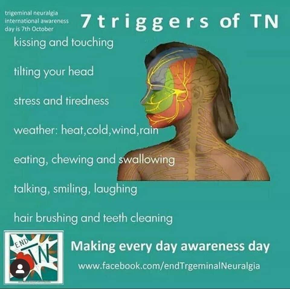 7 Triggers of Trigeminal Neuralgia
