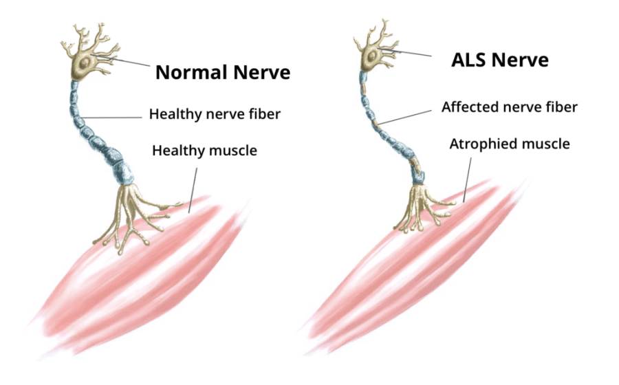 Amyotrophic Lateral Sclerosis (ALS) and the Keto Diet