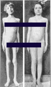 The reversal of emaciation of a T1 diabetic, before and after the discovery of insulin