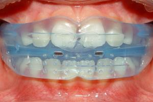 Let's talk about myofunctional orthodontics…..