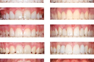Orthodontic space opening or closing for missing upper later incisors: What does the public think?