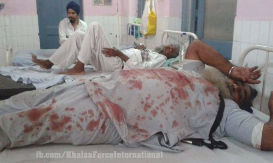 Sikh injured at Kotakpura (5)