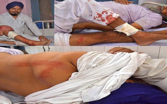 Breaking: Punjab Police Shoot And Kill Two Sikhs In Fridkot