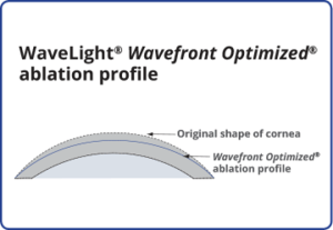 Wavefront optimization profile