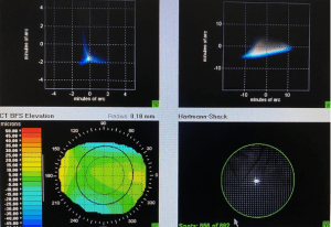 Lower and higher order aberration elevations of the cornea is measured in over a thousand zones.