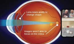 With presbyopia the eye is unable to focus near objects