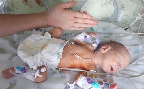 Херсонському малюку провели екстрену унікальну операцію на серці