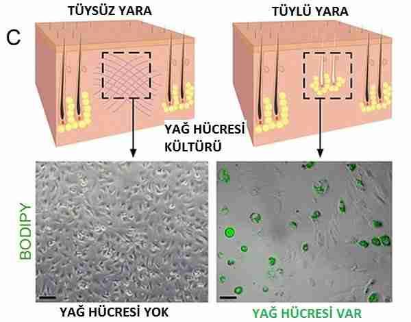 yara-yara_izi-deri-ten-cilt
