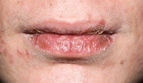 dry-cracked-lips_342x198_C0018629