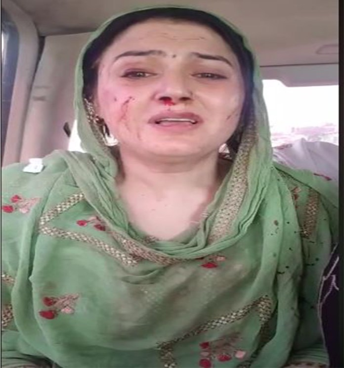 Neelum with bleeding nose, scars on her face highlights her plights
