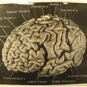 Einstein Brain-Interesting Facts About Einstein
