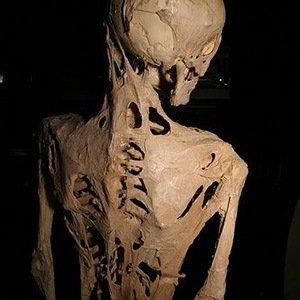 Fibrodysplasia ossificans progressiva-Random Facts List