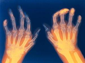 arthritis from iron palm