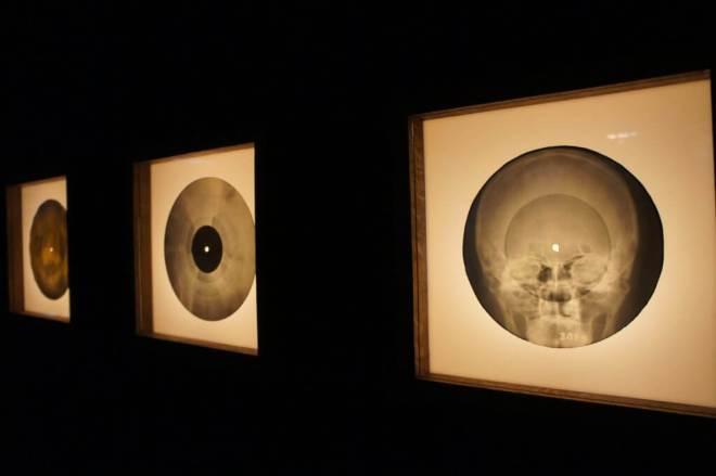 Roentgenizdat Bone Music X-Ray Audio Garage Moscow