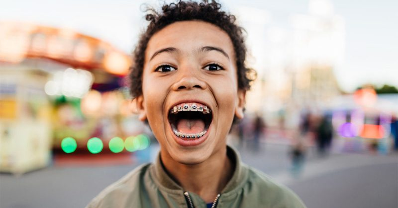 Children, as part of orthodontic treatment, need to wear orthodontic braces. The results of orthodontic treatments as children grow up is amazing.