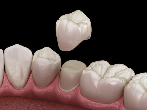 Teeth crown will be put on the remaining tooth structure or a dental implant with the same function like your teeth. The materials in the creation of the dental crown is important in the how the teeth look and how long do they last.