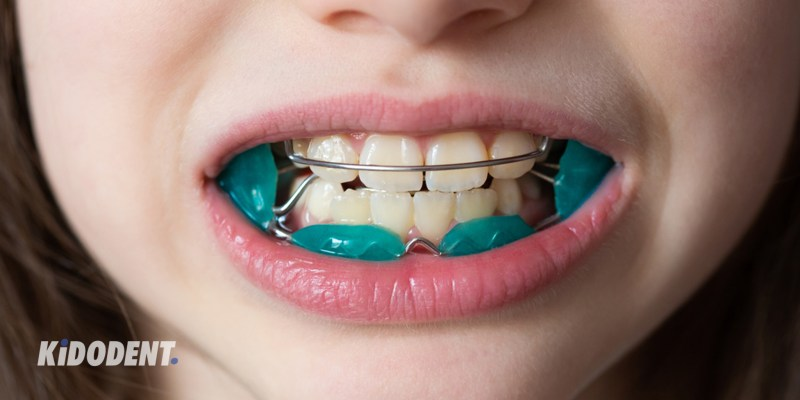 Orthodontic appliace
