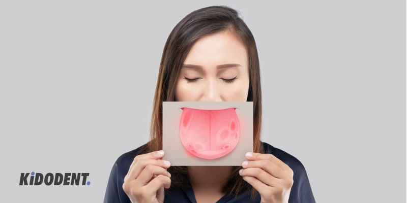 burning mouth syndrome