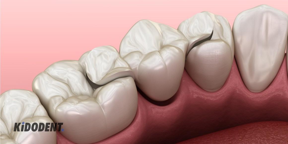 Types of dental bridge